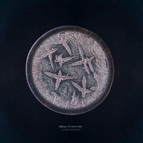Fotografías de lágrimas vistas desde el microscopio